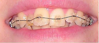 orthodontie cela fonctionne aussi pour les adultes appareil orthodontique pour soins dentaire. Black Bedroom Furniture Sets. Home Design Ideas