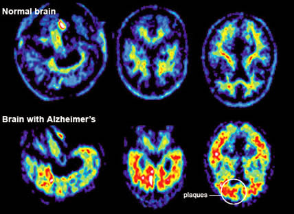 Professor: Aluminum in Food, Cosmetics and Medicine Is Poisoning Our Brains And Causing Alzheimer's Disease  Alheimersbrain3
