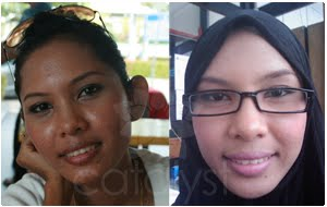 http://1.bp.blogspot.com/-OIYjYePa9kg/TwKm8CQY79I/AAAAAAAAA68/_GznkxKGZW0/s1600/catalyst-pimples-testimonial-2010.jpg