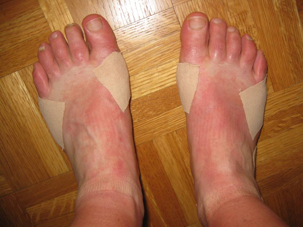 how to stop heat rash on feet