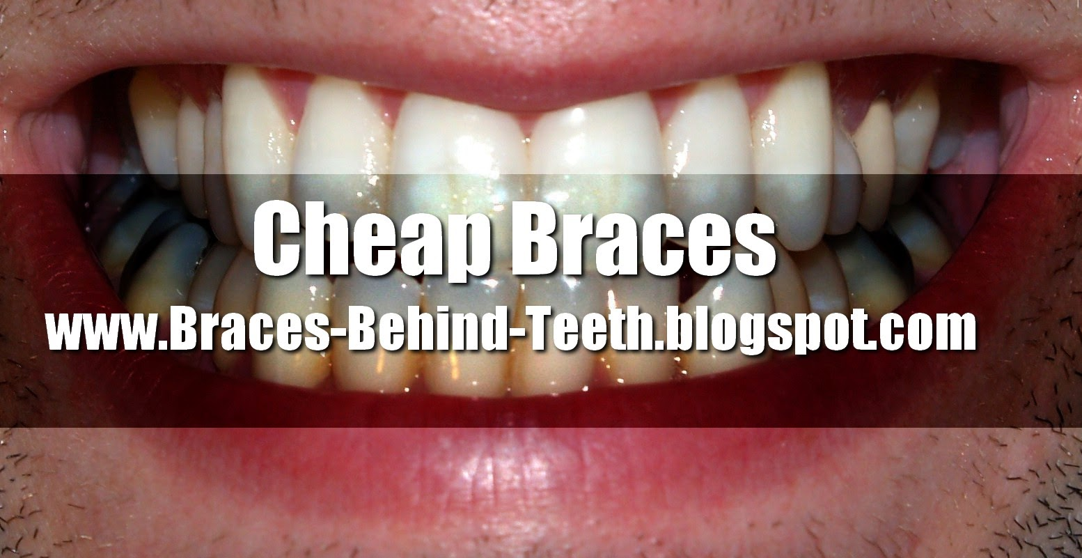 Cheap Braces