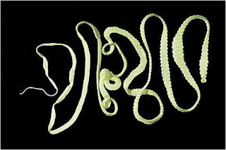 Penyebab Penyakit Cacing Pita