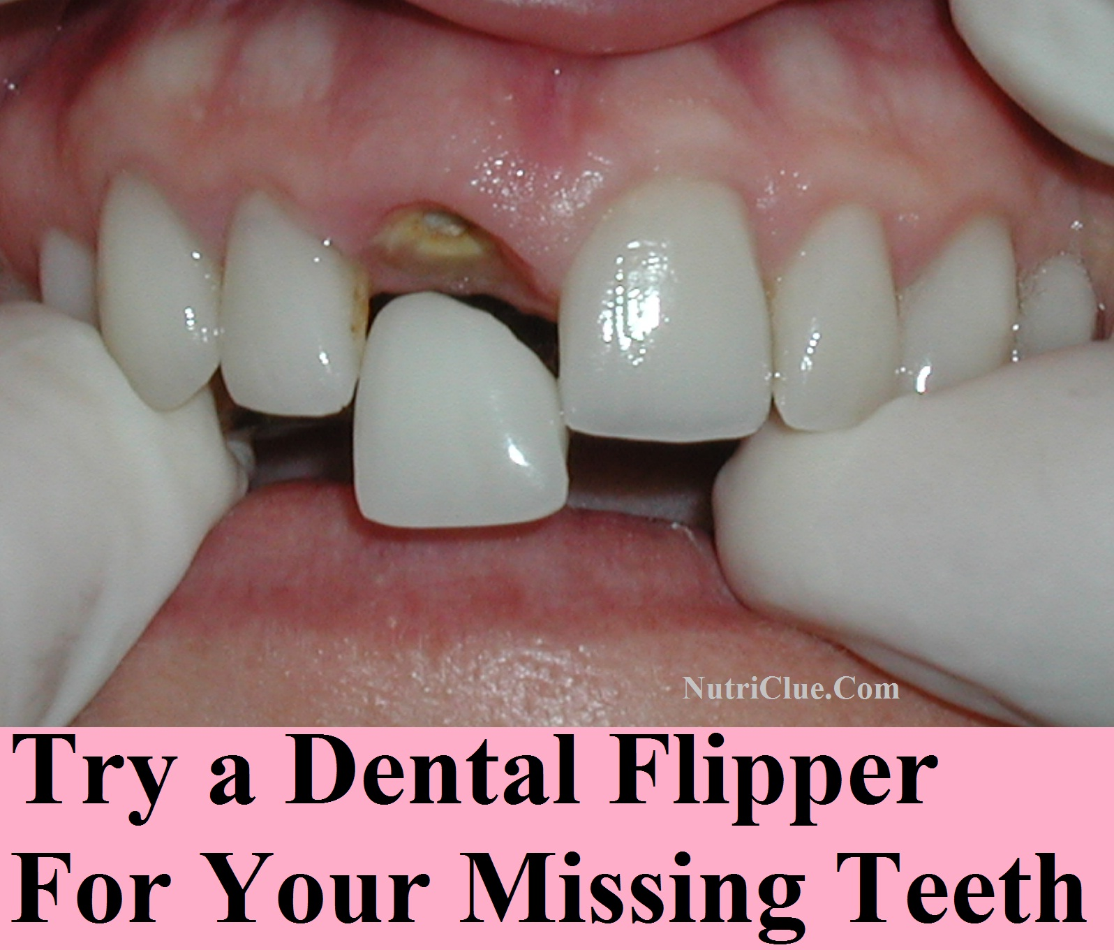 Try a dental flipper for your missing teeth