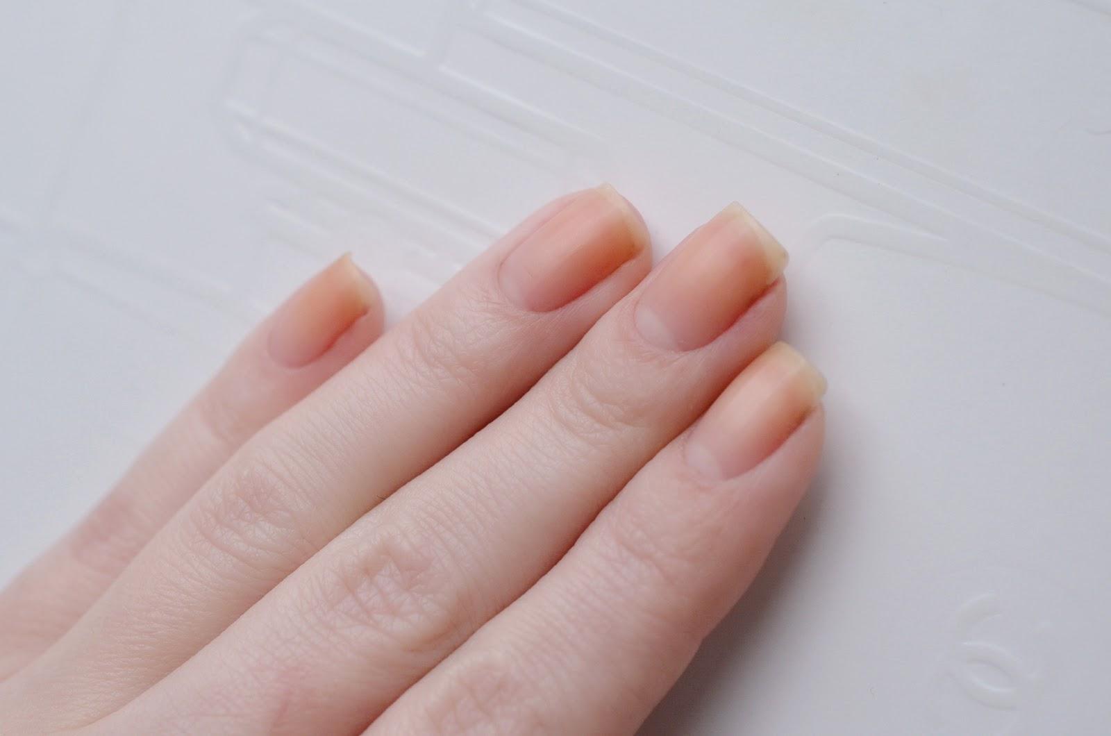 Почему ногти становятся волнистыми. Кто виноват, и что делать?