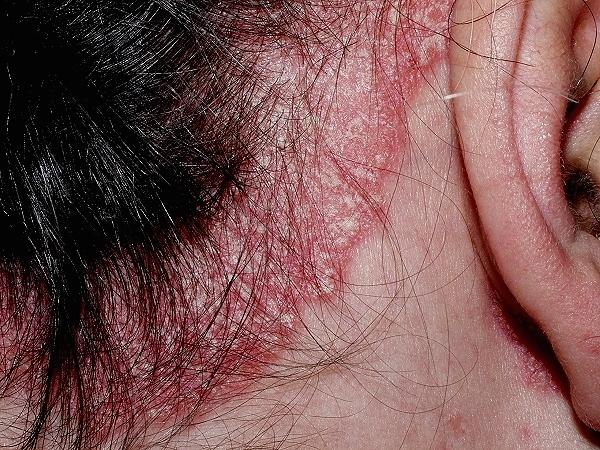De que hay una psoriasis a los niños y como de curarle