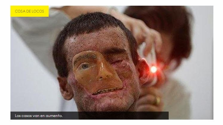 """extraña enfermedad que """"derrite"""" la piel"""