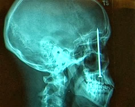A 4-inch Nail in Skull