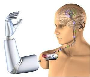 Primeiro implante de uma prótese robótica controlada pelo pensamento