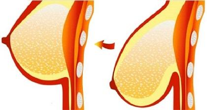 UNA-FORMA-NATURAL-de-evitar-tener-senos-caídos