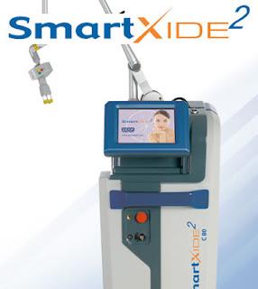 Tratamento SmartXide2