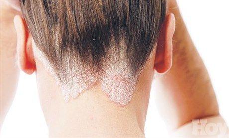 Las máscaras para la humectación de los cabello de la gelatina