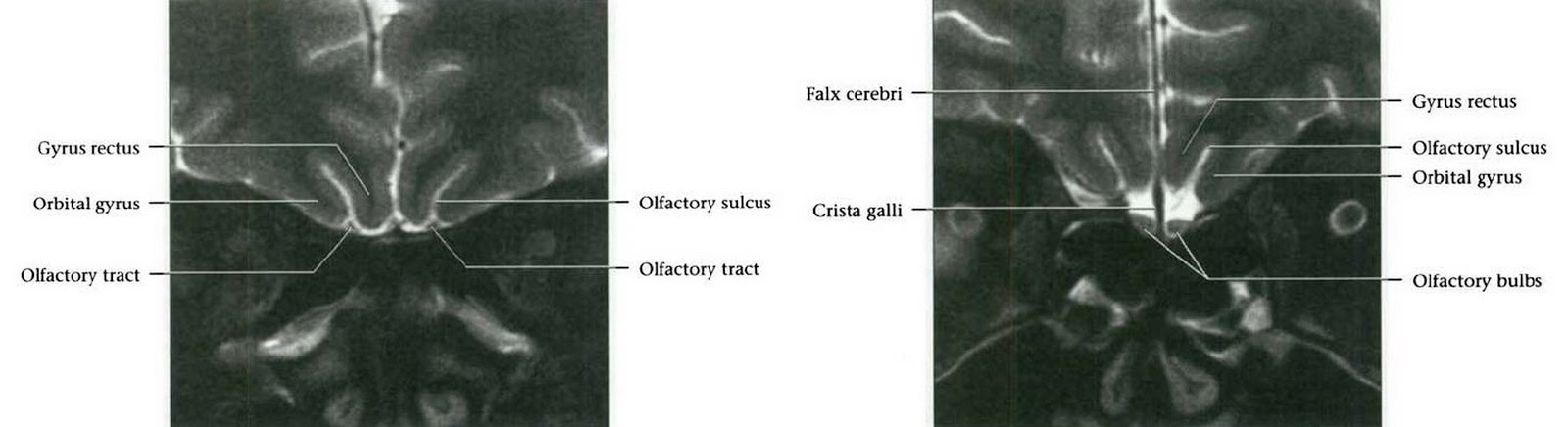 Dr Balaji Anvekar\'s Neuroradiology Cases: Cranial Nerves Normal MRI ...