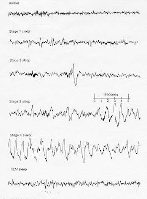Electroencephalogram with alpha, theta and delta waves present during the stages of non-REM and REM sleep.