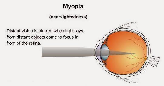 obat miopia herbal