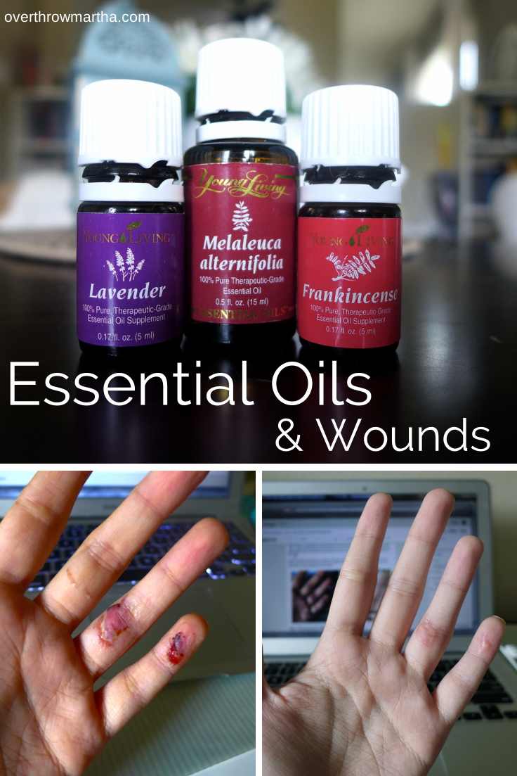 I healed a wound and prevented infection using essential oils!! It WORKED #health