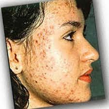pimple treatment