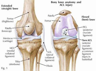 ACL Injuries