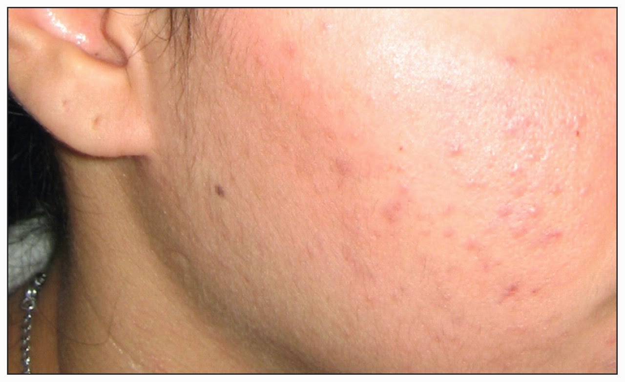 How To Get Rid Of Acne Papules