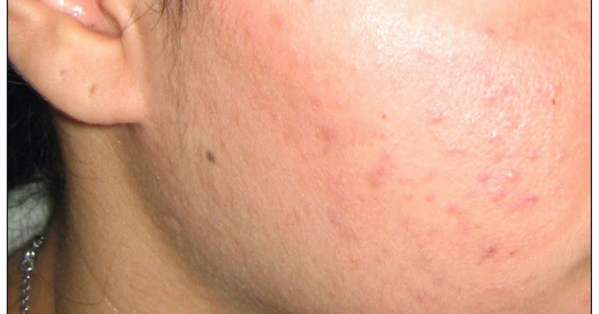 Papules  A Tender Type Of Acne