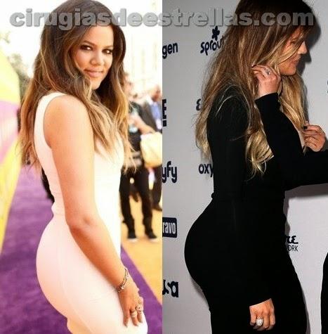 Khloe Kardashian antes y después