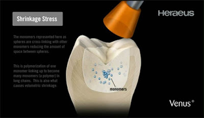 implant-dentist-sydney-combatting-air-bubbles-in-dental-ceramics