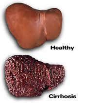 Tratament naturist pentru ciroza hepatica