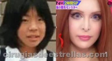Vanilla Chamu antes y después