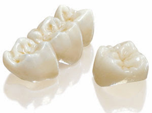 Bellevue Dentist Porcelain Crowns