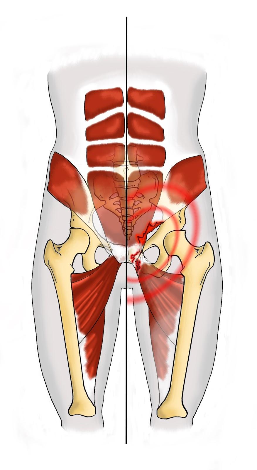 Blog 75 infos sant sport et sant pubalgie et douleurs for Douleur interieur cuisse droite