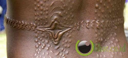 Modifikasi kulit