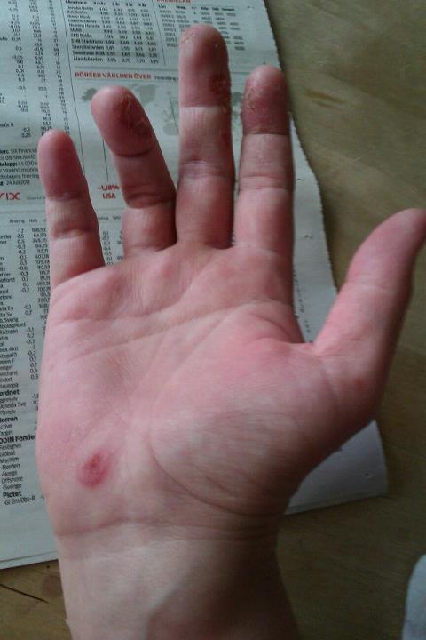 svinkoppor på händerna