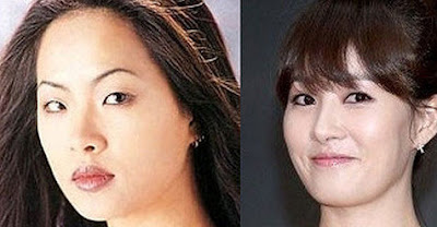 Kim Sun Ah Before After