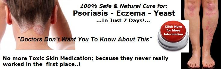 scalp psoriasis; skin eczema