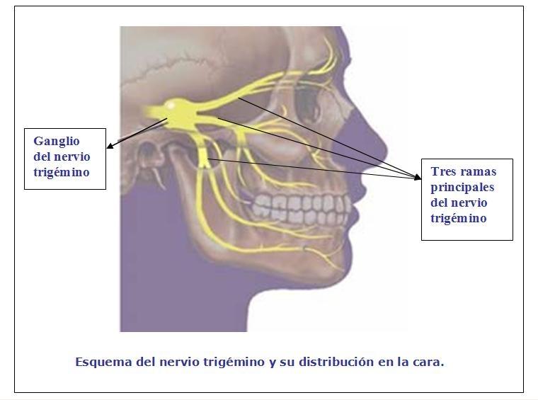 Diagnstico de la parlisis facial - CCM