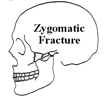 Classification of Zygoma Fracture