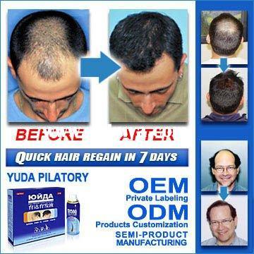 vitamins for receding hairline