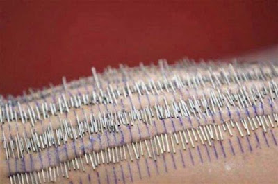 3200 Needles In The Body Amazing World Record