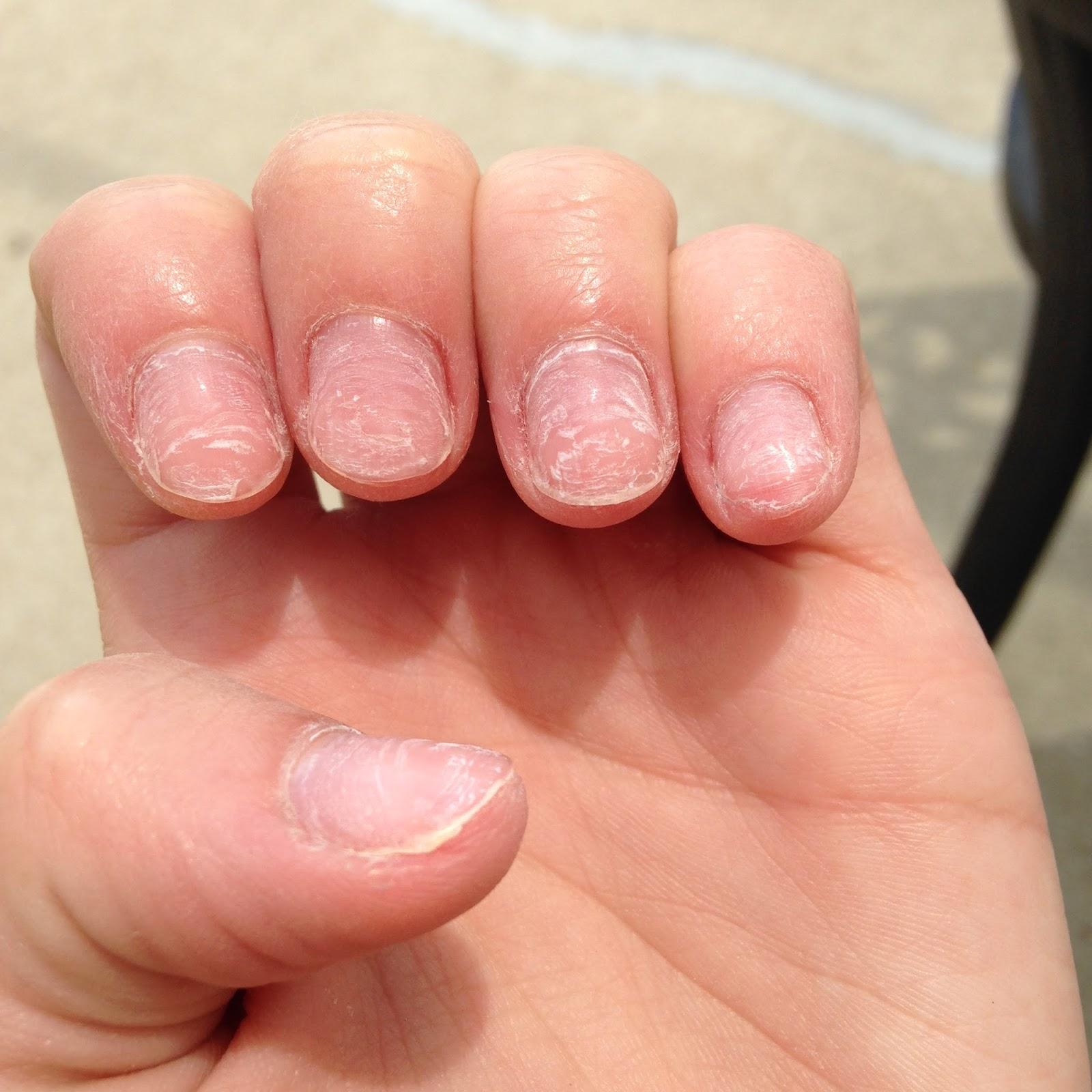 Run. Ride. Read. Repeat. : Removing Acrylic Nails