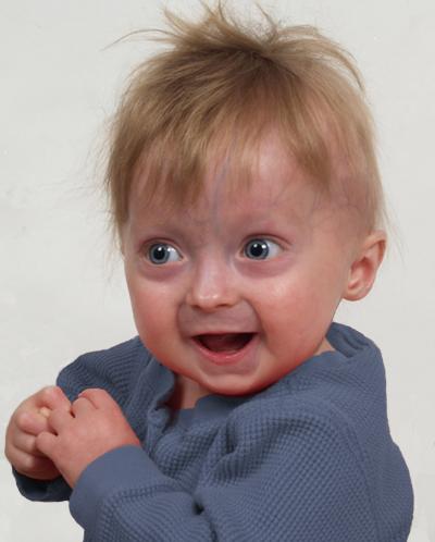 Progeria Baby Symptoms