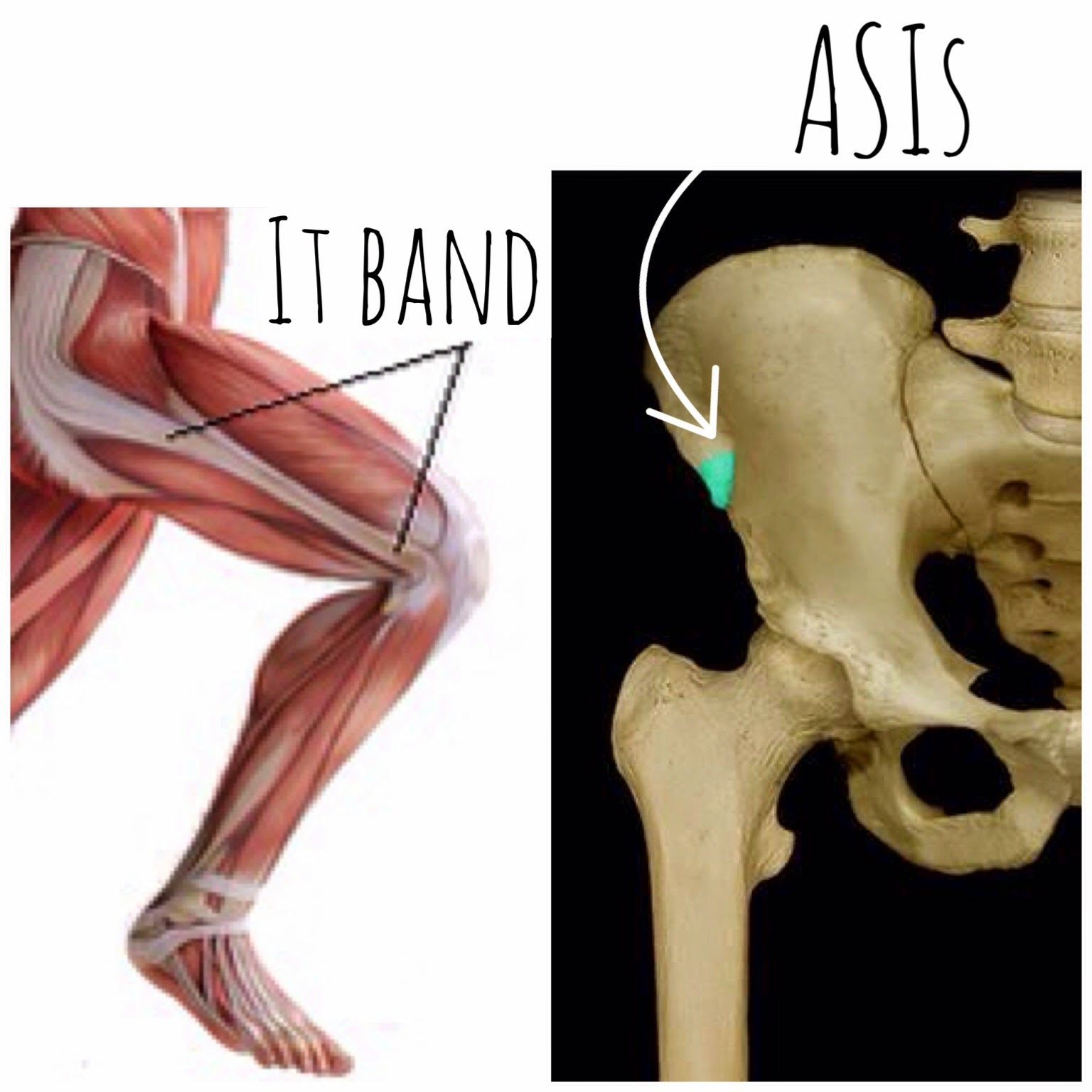 The Hip Joint: TFL: Tensor Fasciae Latae