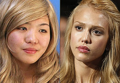 jessica alba plastic surgery before after