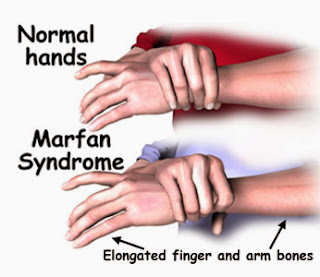 Marfan Syndrome Causes, Symptoms, Diagnosis, Treatment, Prevention