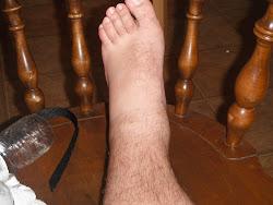 Alex's foot =(