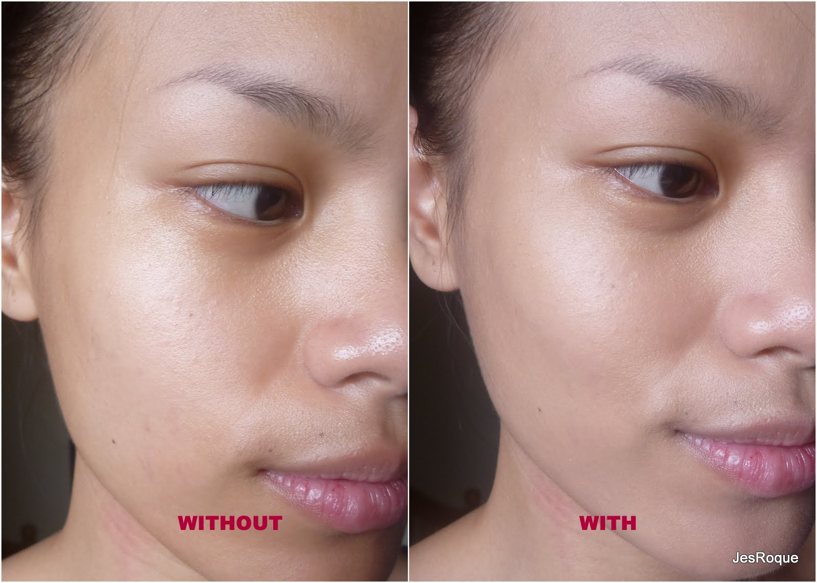 steroid cream for white spots on face