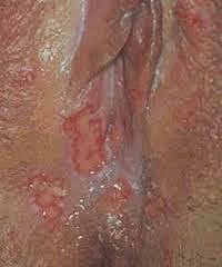 Penyakit Herpes Pada Wanita