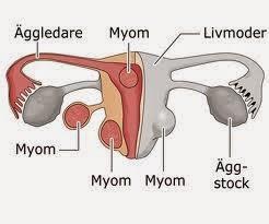 http://sayherbal.blogspot.com/2015/04/pengobatan-herbal-untuk-mioma-uteri.html