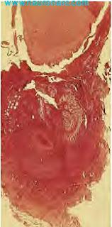Radicular Cyst: Definition, Development, Components, Histology