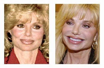 Celebrity Plastic Surgery: Loni Anderson Plastic Surgery