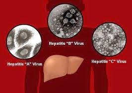 Gejala dan Tanda dari Infeksi Jenis Virus Hepatitis