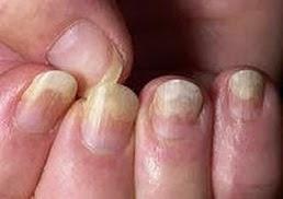 Средства для лечения грибка ногтя на ногах